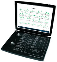 Arrhythmia Monitor